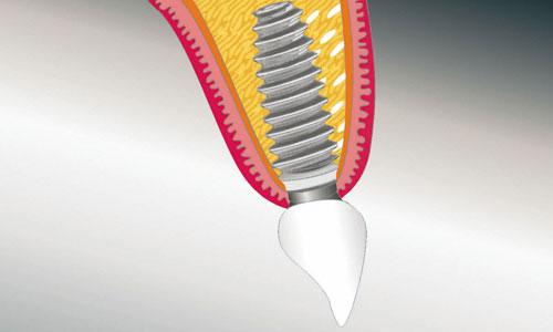 Implantat-fest