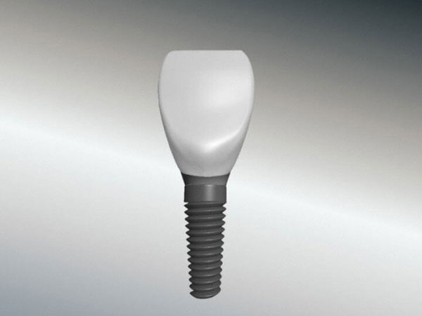 implantat_krone